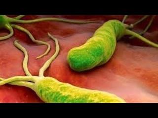 ★ Как избавиться от бактерии хеликобактер пилори. Природные средства против бактерии Helicobacter