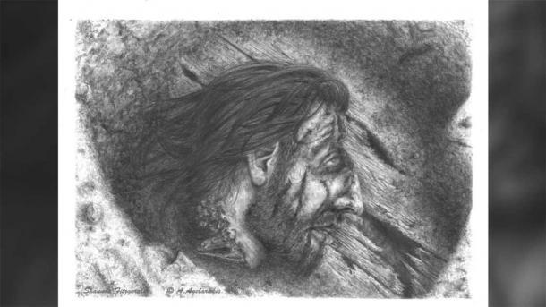 """Продвинутая хирургия древнего мира -""""золотая"""" челюсть греческого воина, изображение №3"""